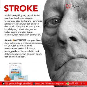 SOP 100+ untuk stroke