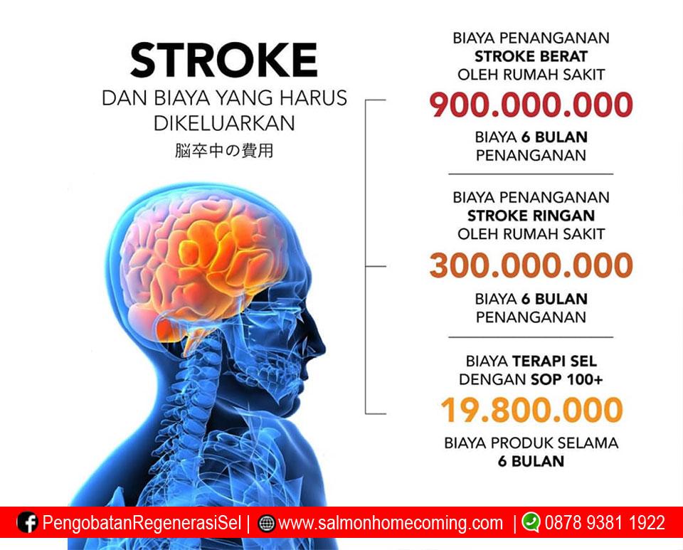 biaya pengobatan penyakit stroke