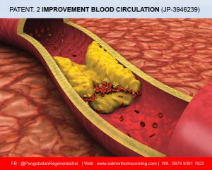 SOP 100Plus Memperlancar Peredaran Darah