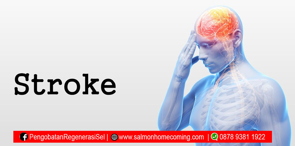 salmon ovary peptide untuk stroke