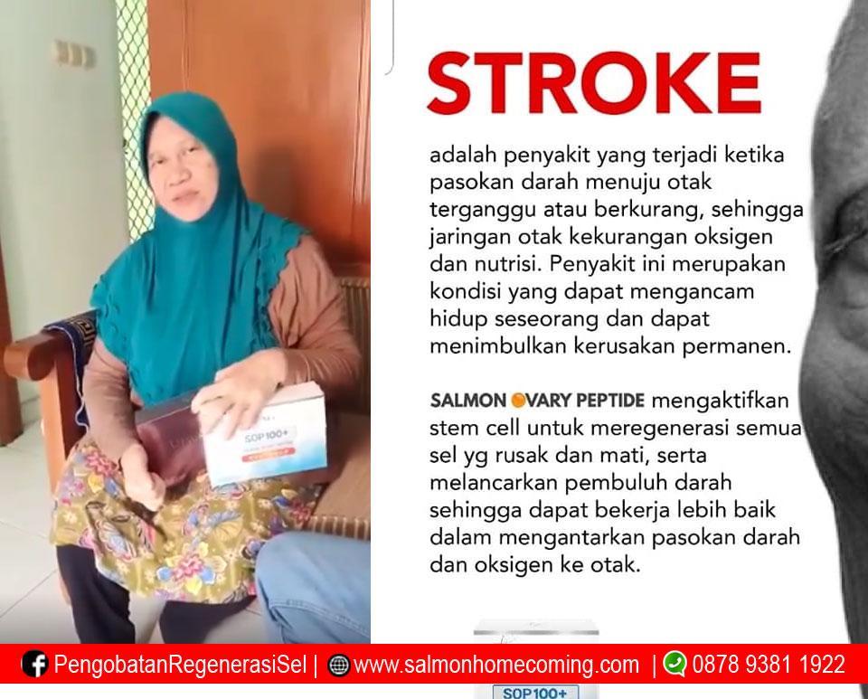 stroke ringan bisa sembuh dengan SOP 100plus