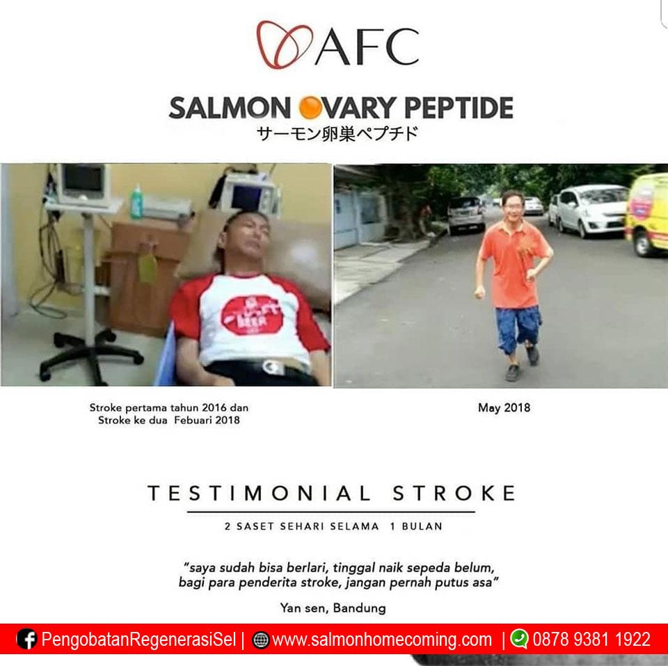 Pengalaman minum sop100+ untuk stroke