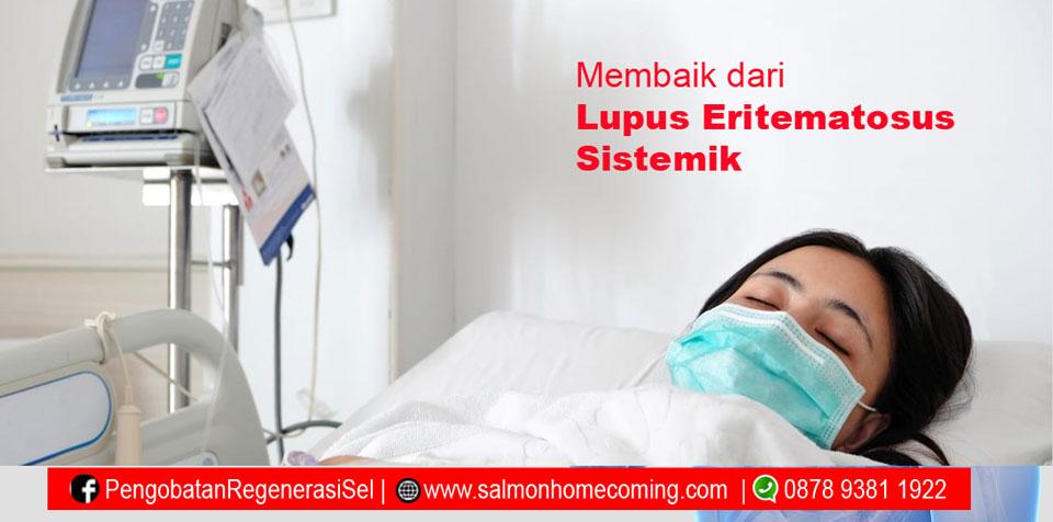 Obat Penyakit Lupus Eritematosus Sistemik