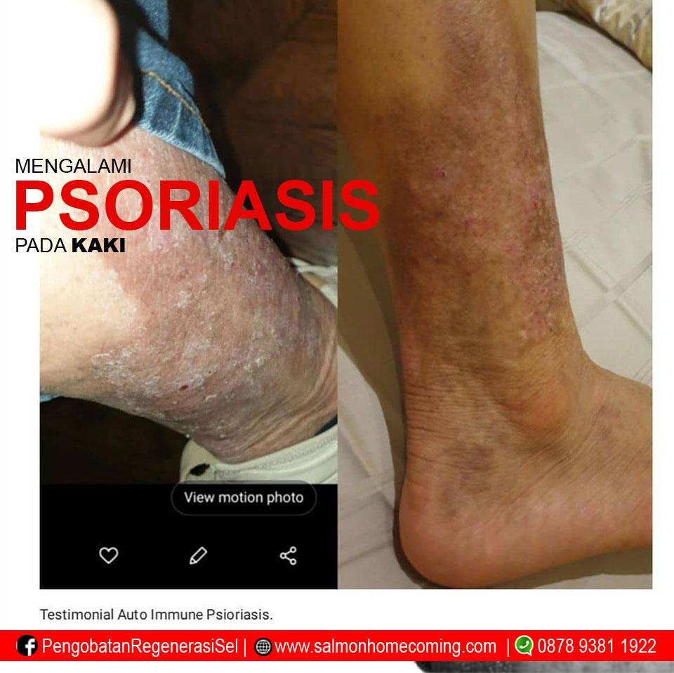 obat herbal psoriasis kulit