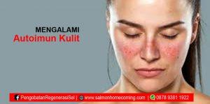 penyakit autoimun pada kulit
