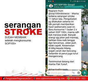terapi stroke dengan stemcell