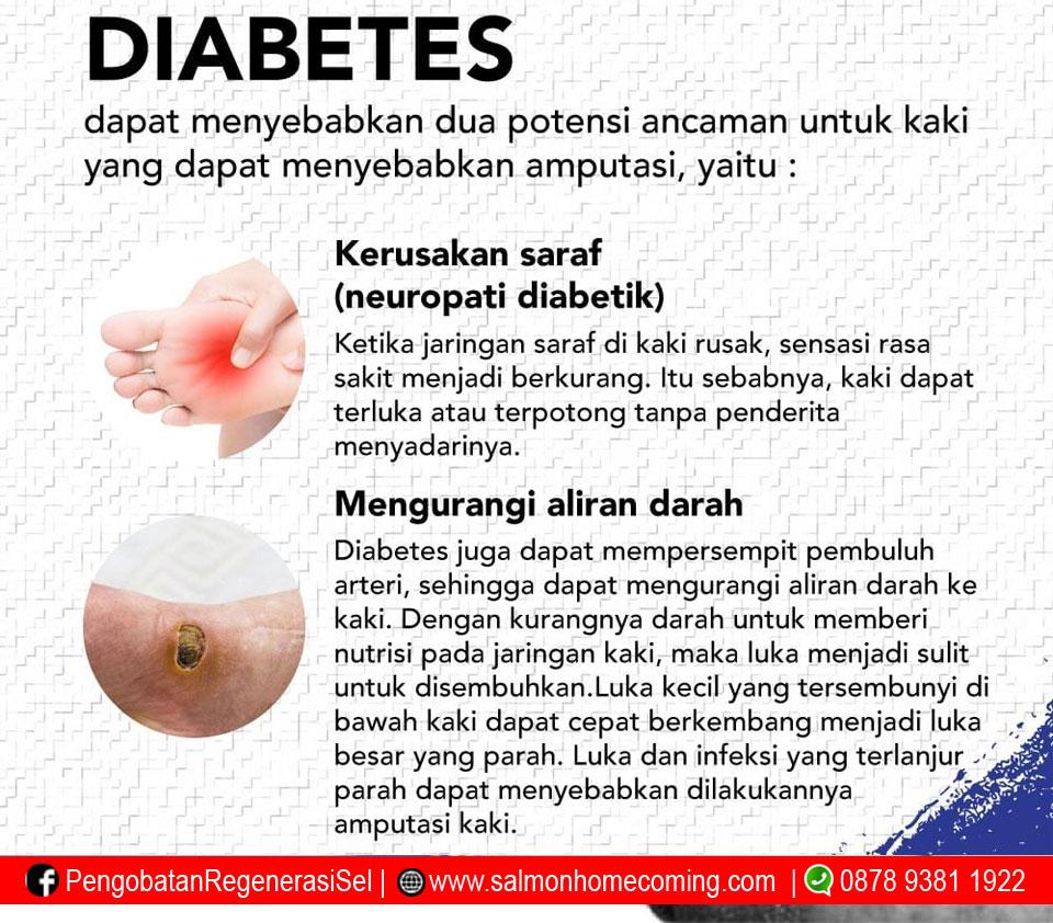 komplikasi diabetes melitus tipe 2