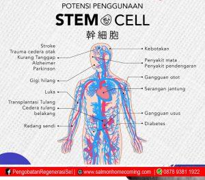 Pengobatan Diabetes Melitus dengan Stem Cell