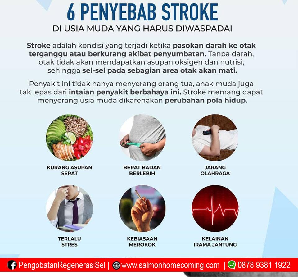 Penyebab Stroke Pecah Pempuluh darah