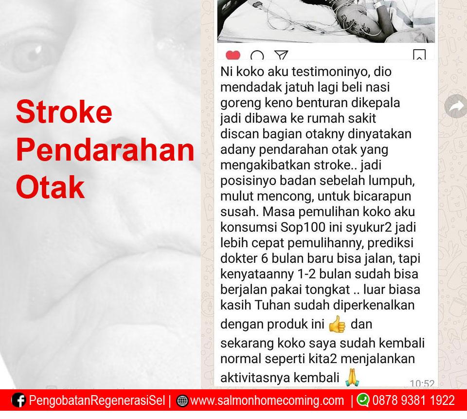 Testimoni SOP 100+ Stroke Pendarahan Otak