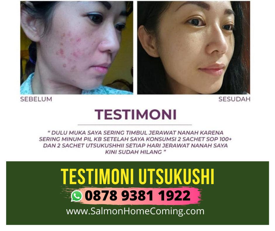 testimoni utsukushi untuk pori-pori kulit