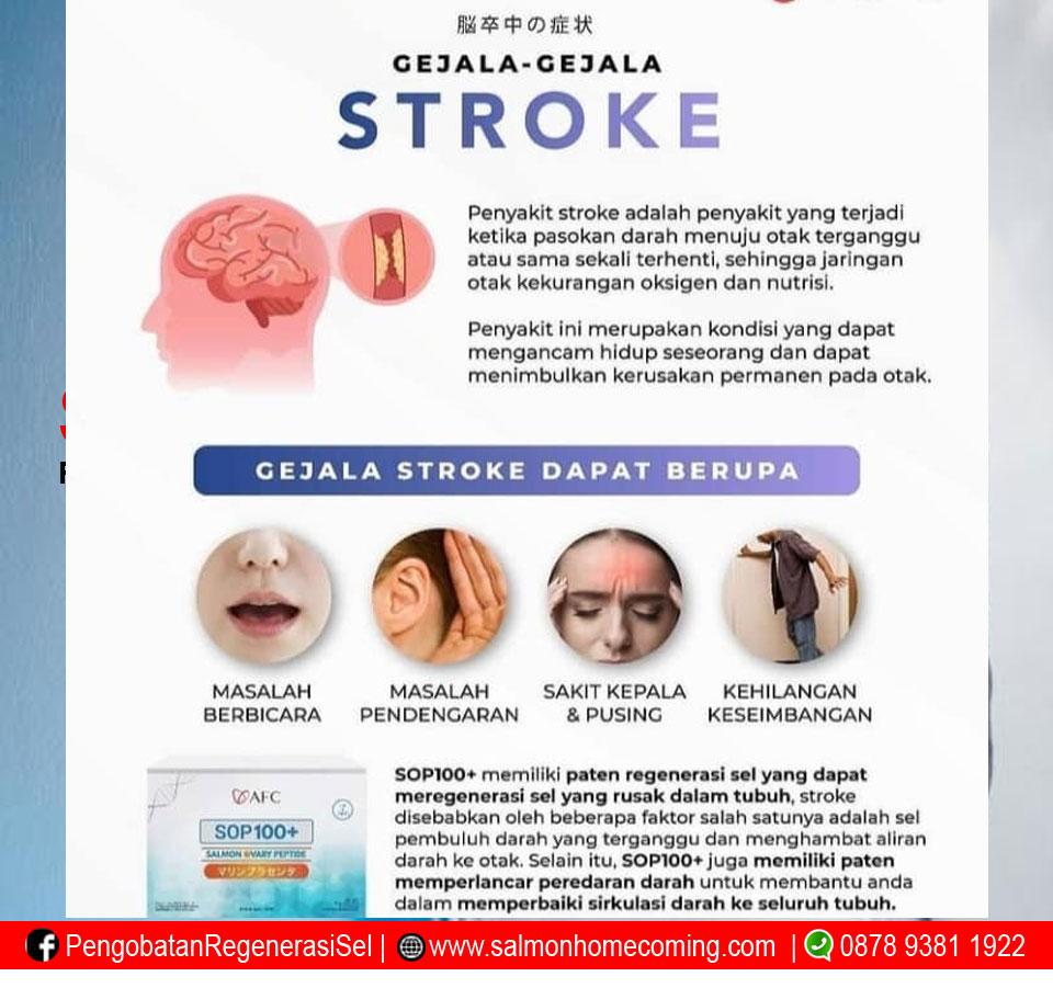 Gejala - gejala Stroke