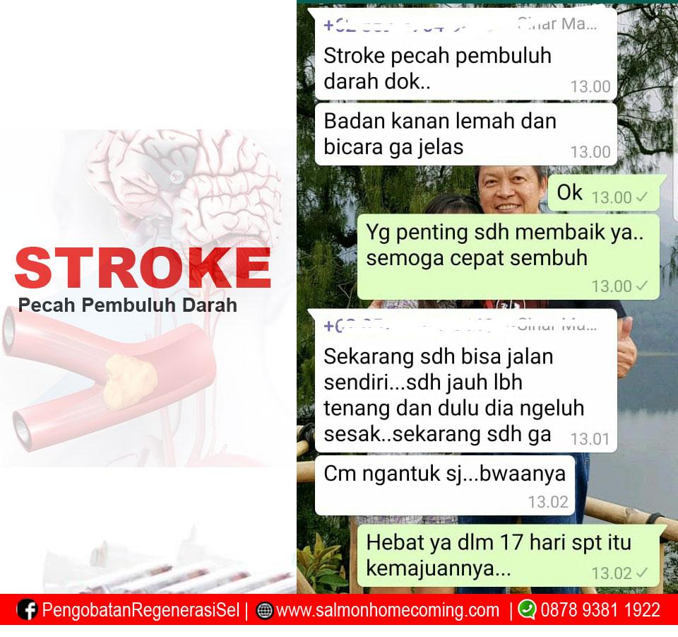 stroke pecah pembuluh darah