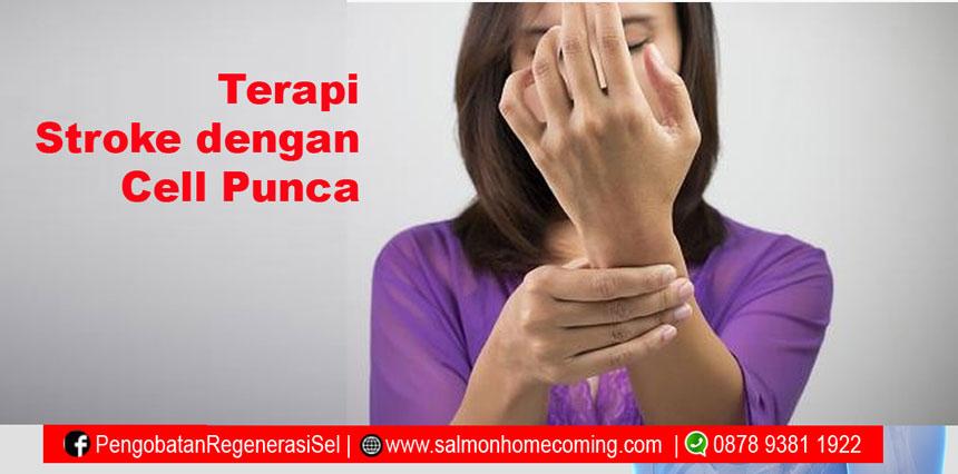 Efek samping stem cell